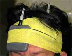 transcranial Direct Current Stimulation