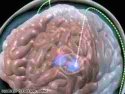 Deep Brain Stimulation for Depression