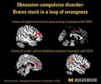 What causes OCD