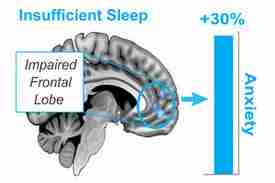 does sleep affect anxiety